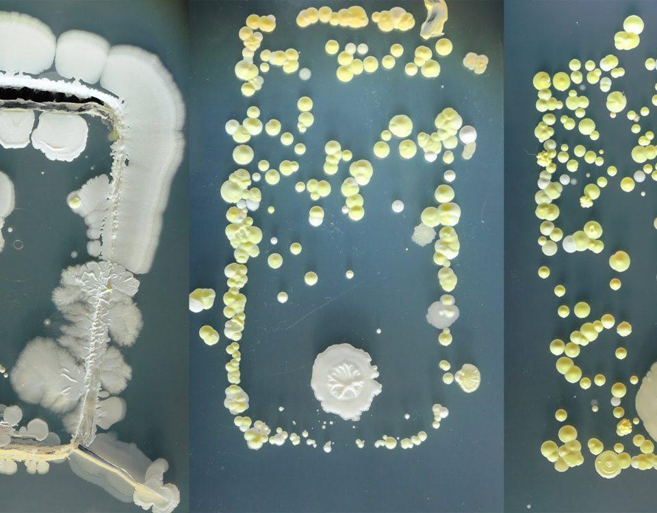 Bakterijos ant telefono